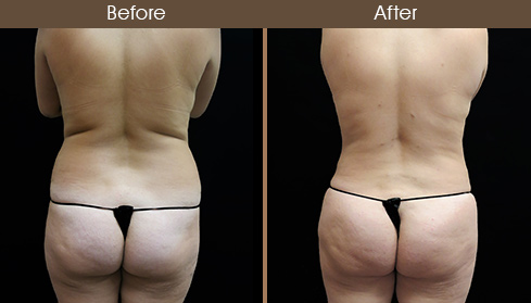 20172007154610_case39-liposuction-back