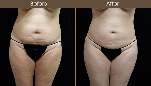 20172007154610_case39-liposuction-front