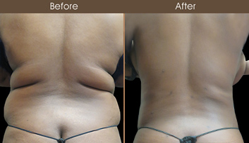 20190404195247_liposuction-before-and-after