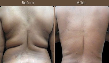 20192703135603_liposuction-before-and-after