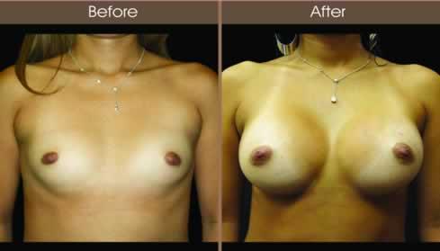 Fat Transfer Breast Augmentation Patient