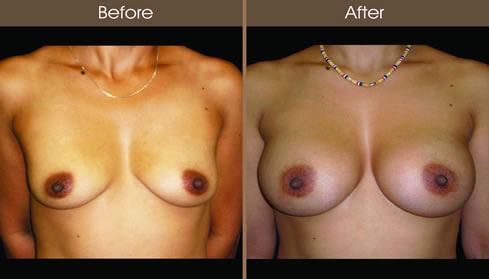 Fat Transfer Breast Augmentation