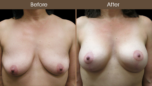 Saline Implants - Breast Enhancement Patient