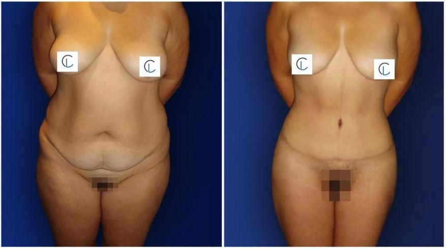 Tummy Tuck in NYC