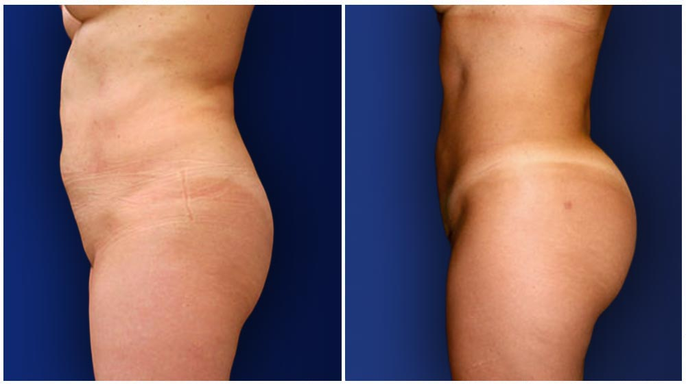 Fat Transfer to Buttocks Patient